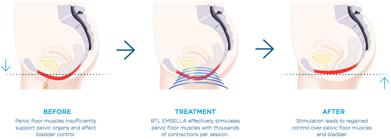 BTL Emsella - A Breakthrough Treatment for Incontinence and