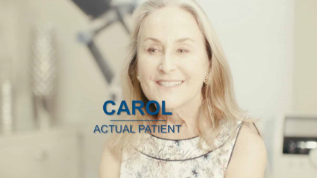 BTL Exilis Ultra VIDEO Testimonial Patient Carol ENUS101