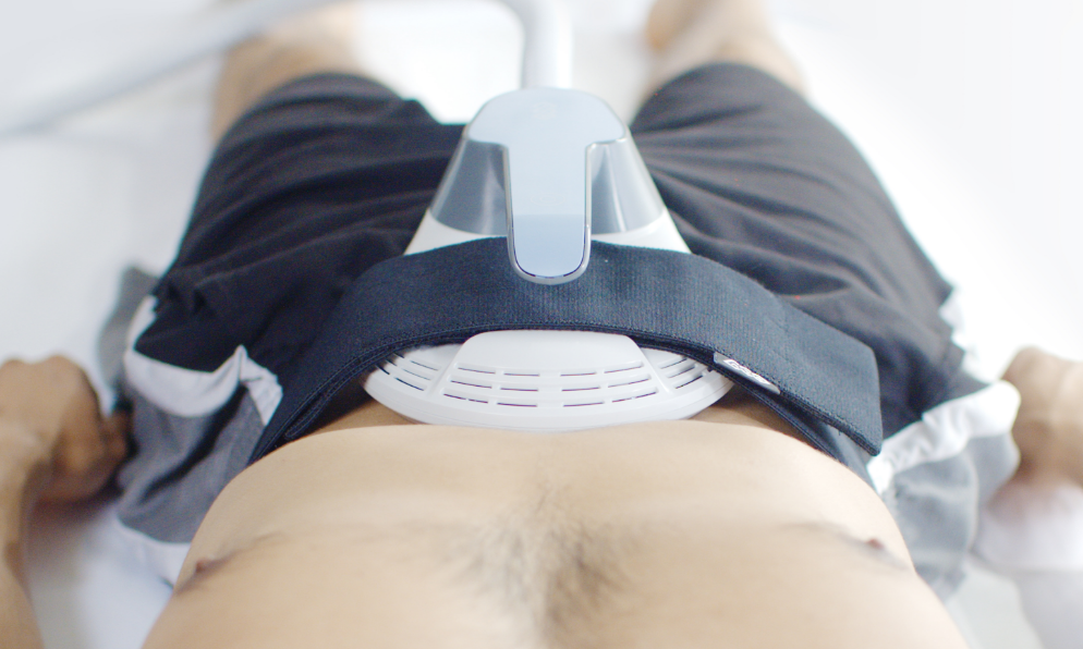 Emsculpt Male Abdomen Treatment