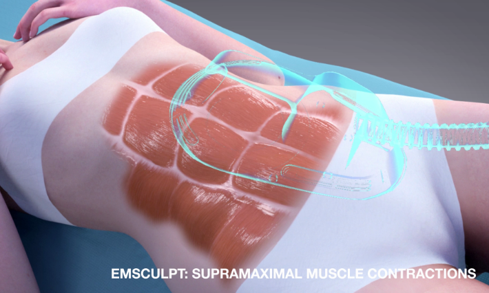 Emsculpt VIDEO Moa animation EN1002x